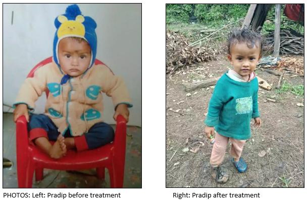Healing Pradip's foot
